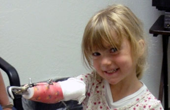 child prosthetic hand